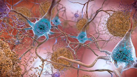 CRISPR nanoparticles are the next big hope in Alzheimer's disease treatments