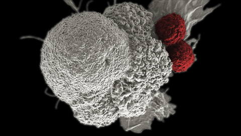Great hope for immunotherapy