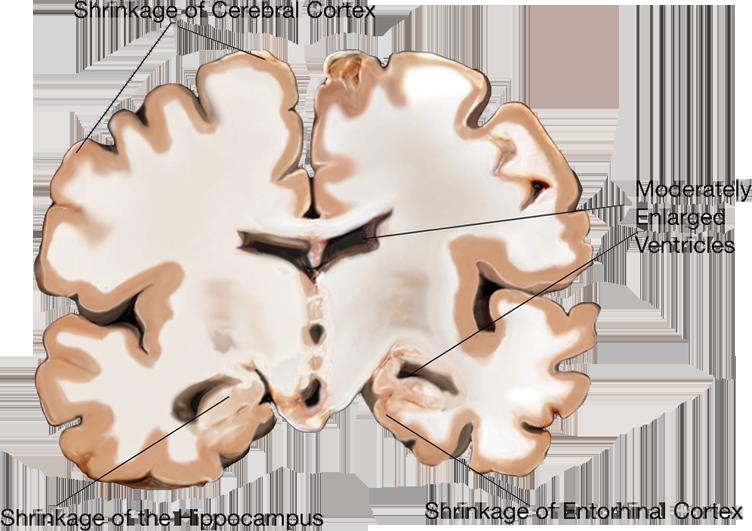 brain scan: moderate affliction