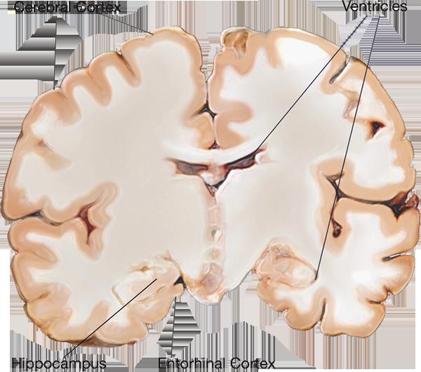 brain scan: normal