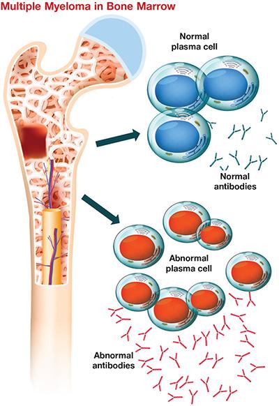 Plasma cells in bone marrow