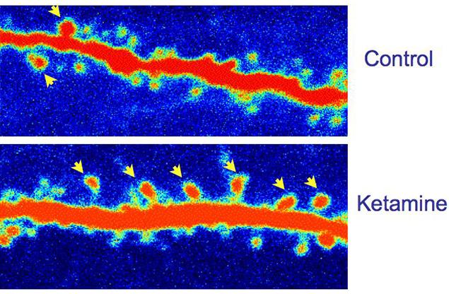 Ketamine strengthens connections between brain cells