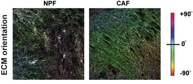 Cancer-associated fibroblasts